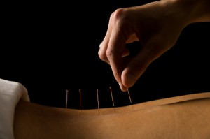Acupuncture treatment in Shinfield near Reading, Berkshire